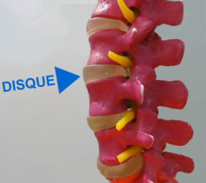 photo d'une colonne vertebrale montrant un disque