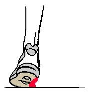 usure chaussure sport - cabinet ostéopathe clermont ferrand cébazat