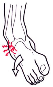 dessin mécanisme entorse cheville ligament douleur pour cabinet ostéopathie cébazat proche de ladoux et gerzat